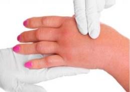 دلیل ورم کردن دست بعد از ورزش چیست؟