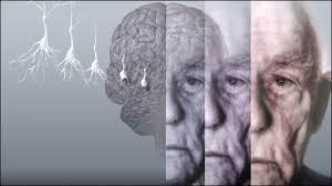 آلزایمر چگونه آغاز می شود؟