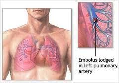 آمبولی ریوی چیست و چگونه درمان می شود؟