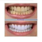 10 علت بدرنگی دندانها و راههای جلوگیری از آنها