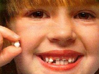 جلوگيری از زود افتادن دندانهای شيری
