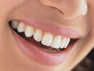 ميکروبی که دندان ها را از پوسيدگی نجات می دهد