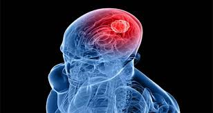 اولین علامت نیمی از تومورهای مغزی را بدانید