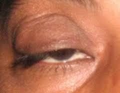 علل افتادگي پلک و راههاي پيشگيري و درمان آن