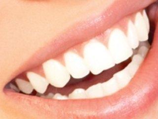 فلورايد باعث كاهش پوسيدگی دندان