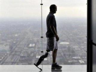 اولین پای مصنوعی رباتيک خودکار
