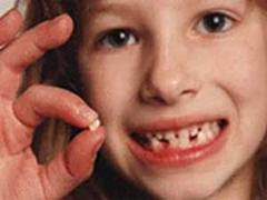 چگونه از زود افتادن دندانهاي شيري کودکمان جلوگیری کنیم؟